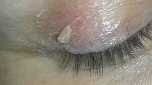 Skin Tags, Wart and Thread Vein Removal Plympton Plymouth