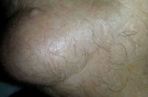 Hair to be removed by Electrolysis